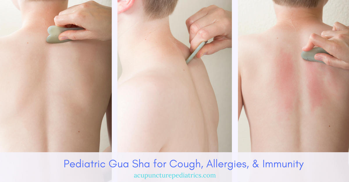 Pediatric Gua Sha for Cough, Allergies, & Immunity