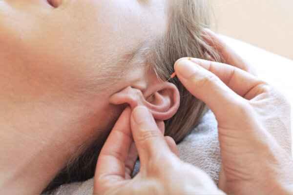 Akupunktur Uddannelse med speciale i ØreAkupunktur / AuriculoTerapi