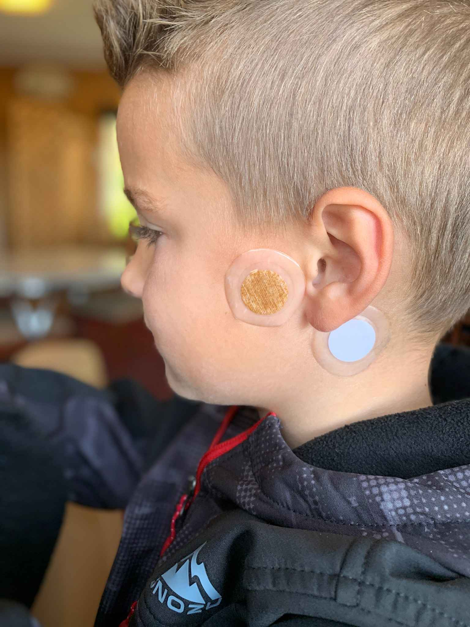 Earaches and Ear Infection Home Remedies that Work Even When Antibiotics  Don't - Robin Ray Green - Healing Kids in the Unwellness Gap™ with Chinese  Medicine