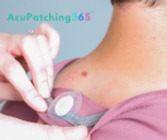 Patching Clothing 365