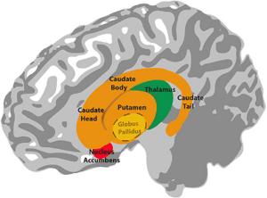 BL00 Brain 2